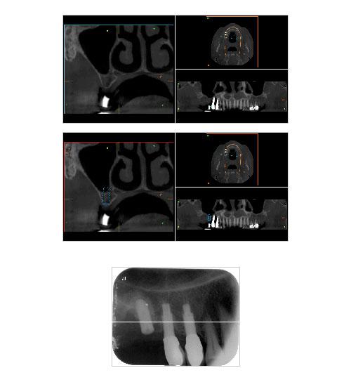 Alternativas a la elevacion de seno maxilar - Del Canto Formación
