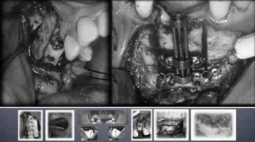 Curso de Implantología Avanzada (Bego Implant)