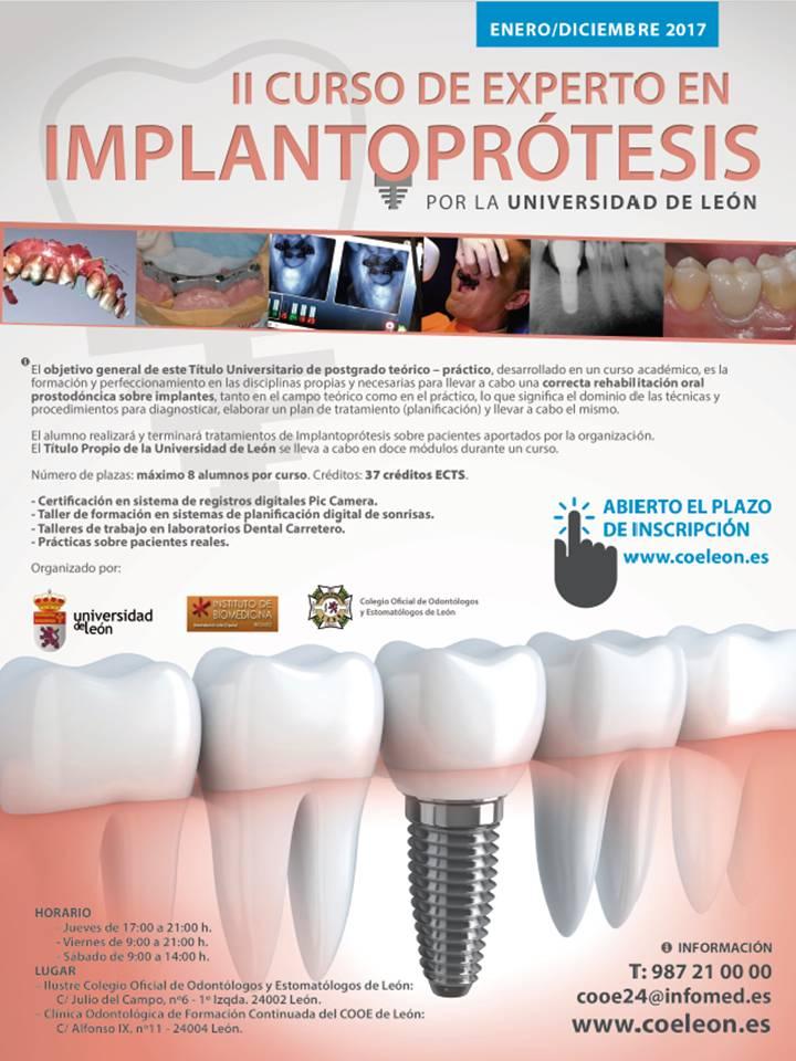 implantoprotesis